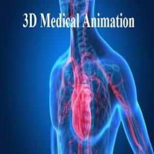 3D-medical-animation-impacts-medical-animation-thumbnail